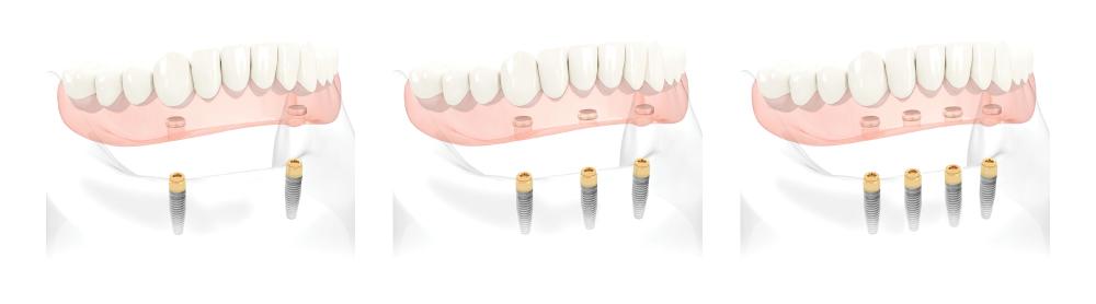 implantologia-4