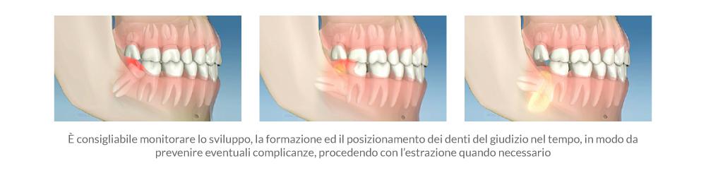 1_denti-giudizio